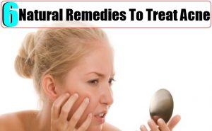 Natural-Remedies-To-Treat-Acne