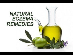 natural-remedies-eczema