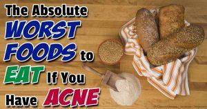 worst-foods-acne