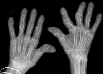 clavicle-arthritis-treatment-exercises-folate-deficiency-rheumatoid-nyg