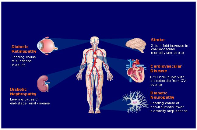 consequences-of-type-2-diabetes