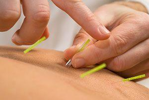 Acupuncture-for-Diabetes